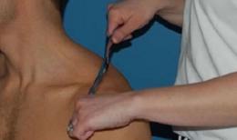 治療の一例 (首・肩関節周辺)